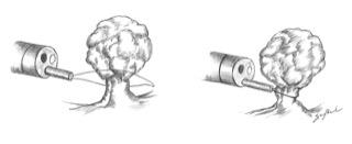 Polipectomia - Dissezione endoscopica sottomucosa e mucosectomia endoscopica