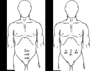 Ernia addominale - Figura 2