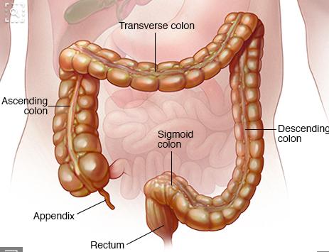Anatomia - tumore al colon