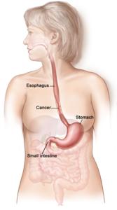 Il tumore dell'esofago - anatomia apparato gastroesofageo